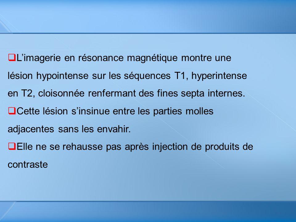 Limagerie en résonance magnétique montre une lésion hypointense sur les séquences T1, hyperintense en T2, cloisonnée renfermant des fines septa intern