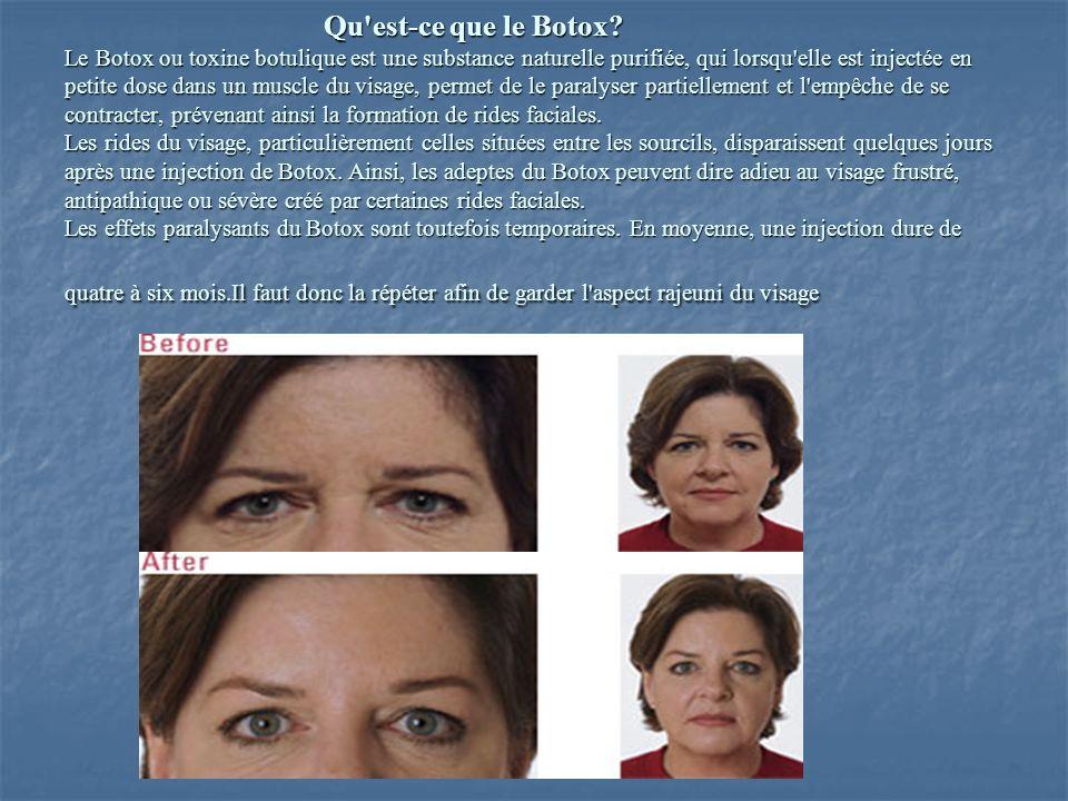 Qu'est-ce que le Botox? Le Botox ou toxine botulique est une substance naturelle purifiée, qui lorsqu'elle est injectée en petite dose dans un muscle
