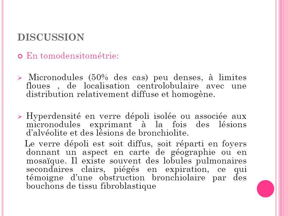 DISCUSSION En tomodensitométrie: Micronodules (50% des cas) peu denses, à limites floues, de localisation centrolobulaire avec une distribution relati