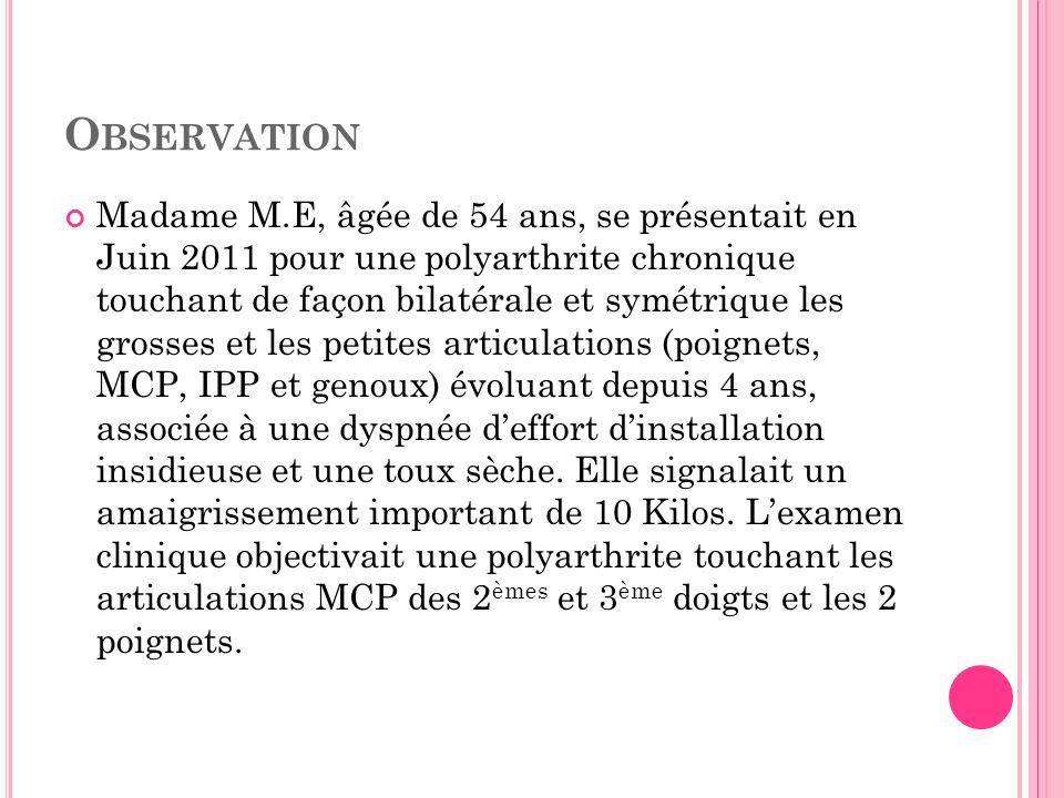 Madame M.E, âgée de 54 ans, se présentait en Juin 2011 pour une polyarthrite chronique touchant de façon bilatérale et symétrique les grosses et les p