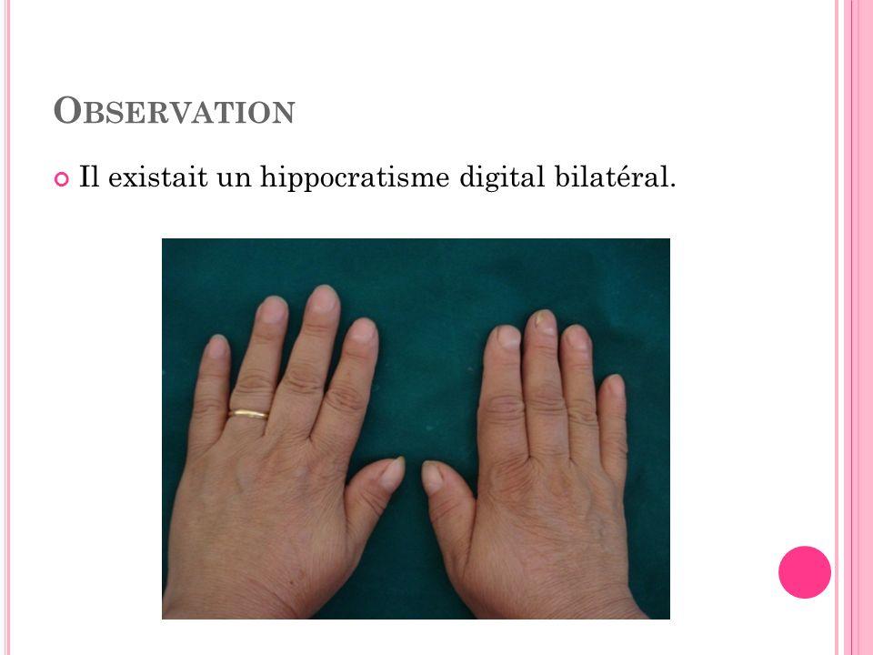 O BSERVATION Lexamen pleuropulmonaire était sans anomalies, ainsi que le reste de lexamen clinique.