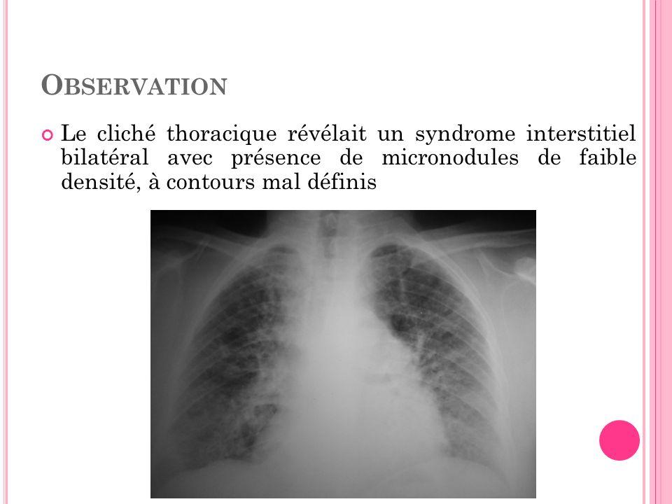 O BSERVATION Le cliché thoracique révélait un syndrome interstitiel bilatéral avec présence de micronodules de faible densité, à contours mal définis