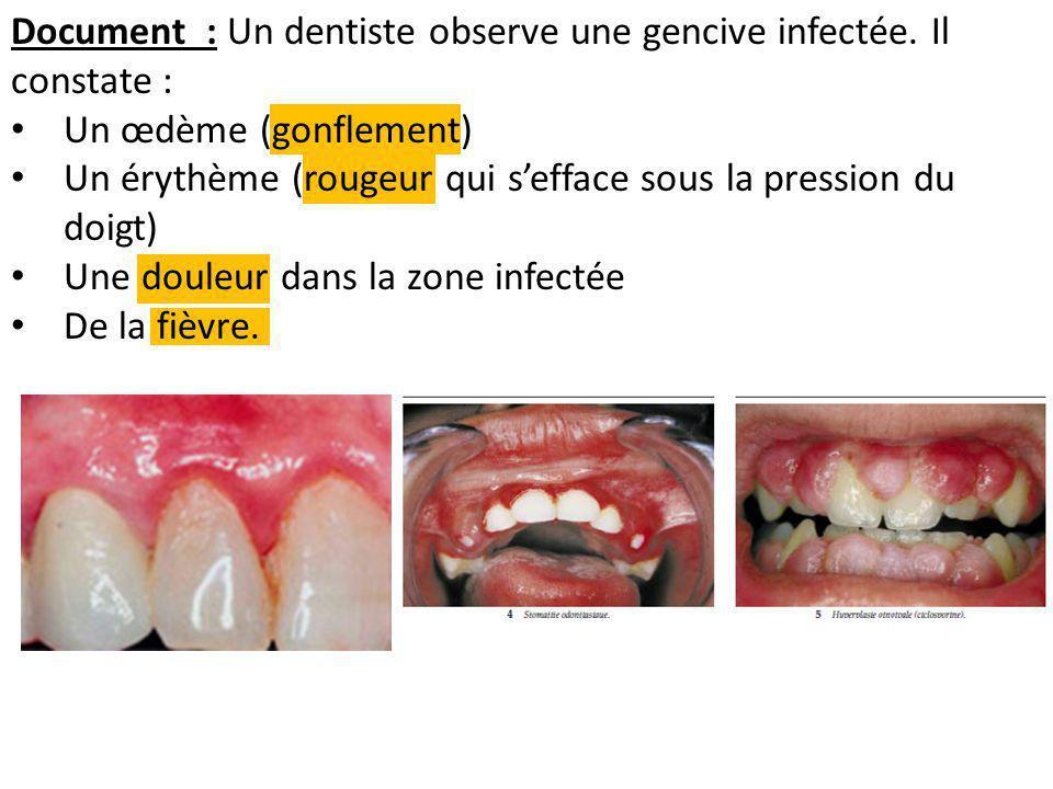 Document : Un dentiste observe une gencive infectée. Il constate : Un œdème (gonflement) Un érythème (rougeur qui sefface sous la pression du doigt) U