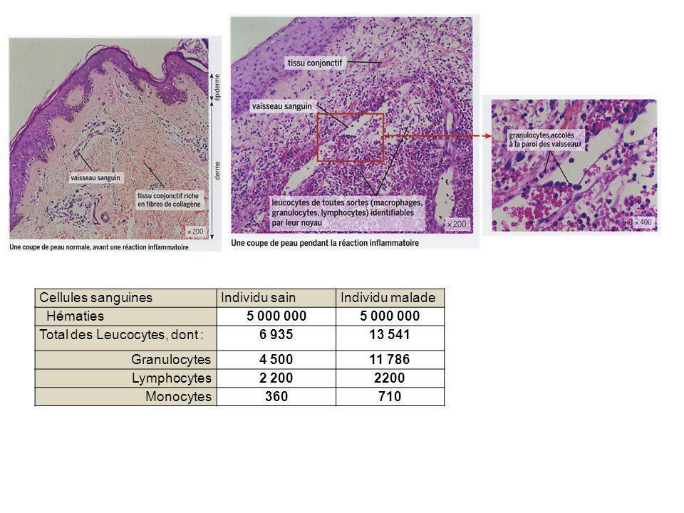 Cellules sanguinesIndividu sainIndividu malade Hématies5 000 000 Total des Leucocytes, dont :6 93513 541 Granulocytes4 50011 786 Lymphocytes2 200 Mono