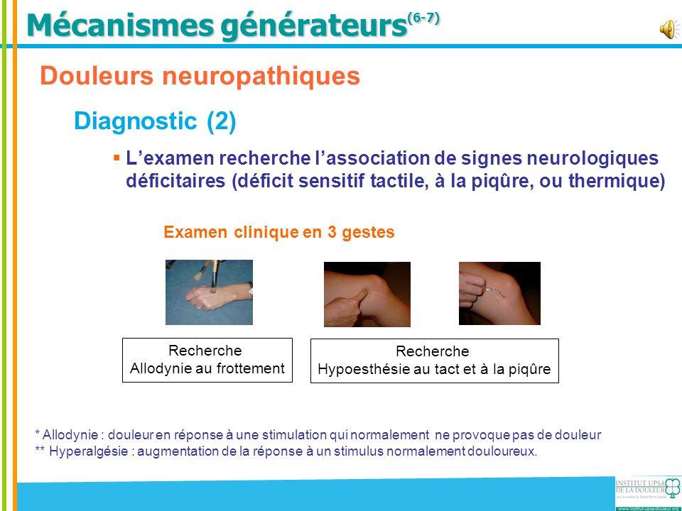 Douleurs neuropathiques Diagnostic (2) Lexamen recherche lassociation de signes neurologiques déficitaires (déficit sensitif tactile, à la piqûre, ou