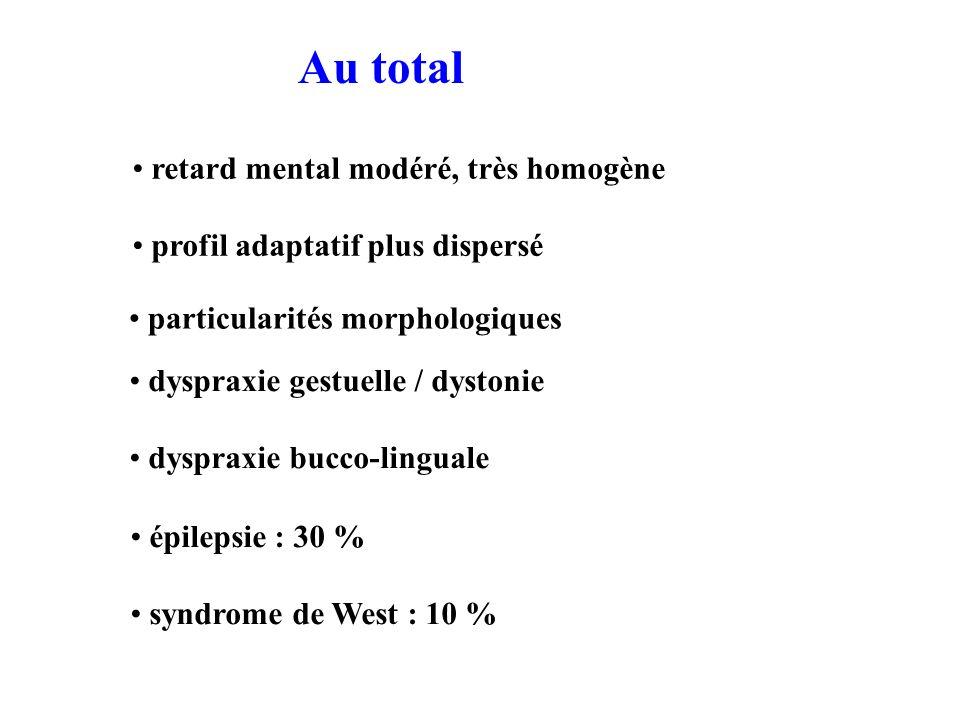 Au total particularités morphologiques retard mental modéré, très homogène profil adaptatif plus dispersé dyspraxie gestuelle / dystonie dyspraxie bucco-linguale épilepsie : 30 % syndrome de West : 10 %