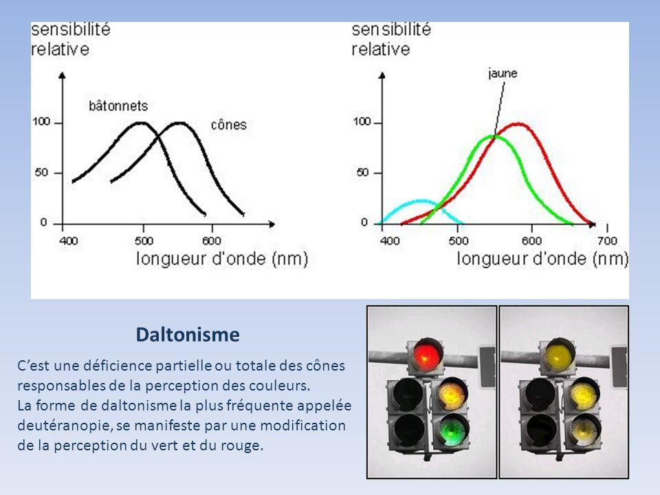 Daltonisme Cest une déficience partielle ou totale des cônes responsables de la perception des couleurs. La forme de daltonisme la plus fréquente appe