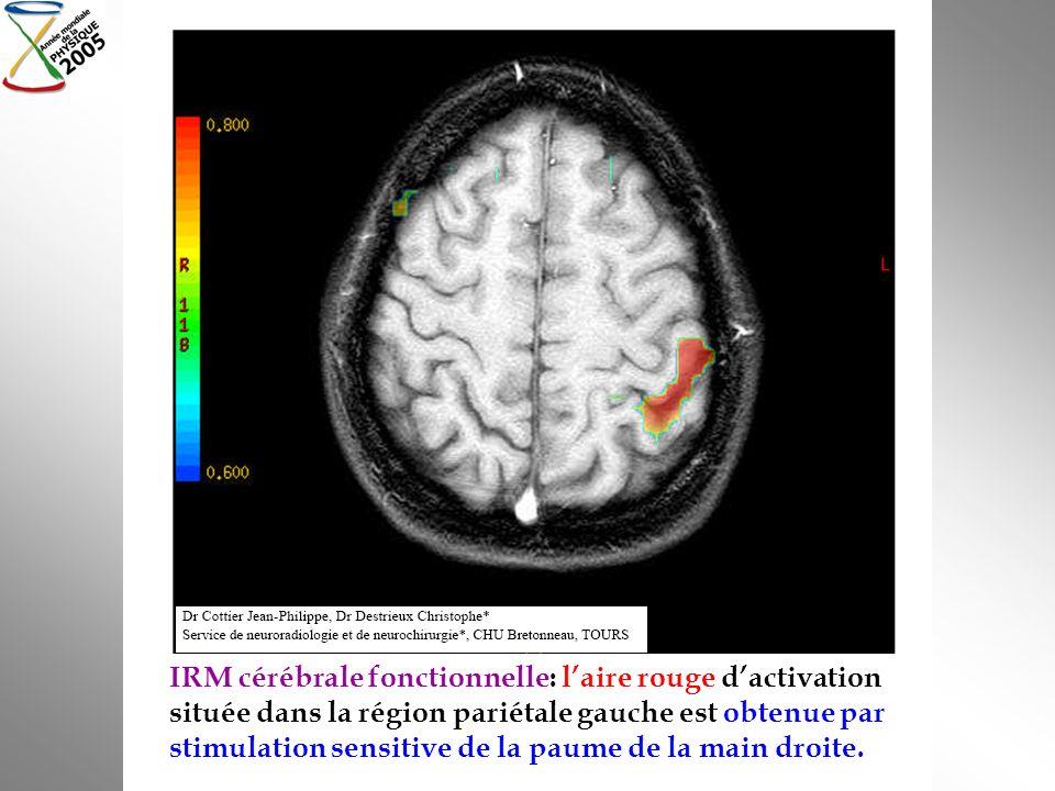 IRM cérébrale fonctionnelle: laire rouge dactivation située dans la région pariétale gauche est obtenue par stimulation sensitive de la paume de la ma
