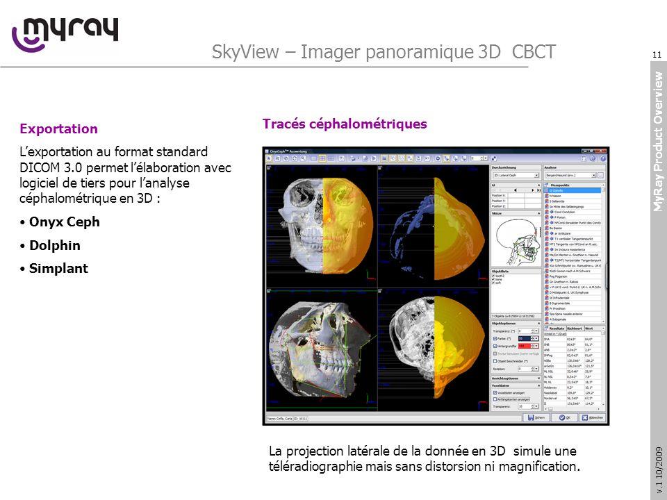 MyRay Product Overview v.1 10/2009 Exportation Lexportation au format standard DICOM 3.0 permet lélaboration avec logiciel de tiers pour lanalyse céphalométrique en 3D : Onyx Ceph Dolphin Simplant Tracés céphalométriques SkyView – Imager panoramique 3D CBCT La projection latérale de la donnée en 3D simule une téléradiographie mais sans distorsion ni magnification.