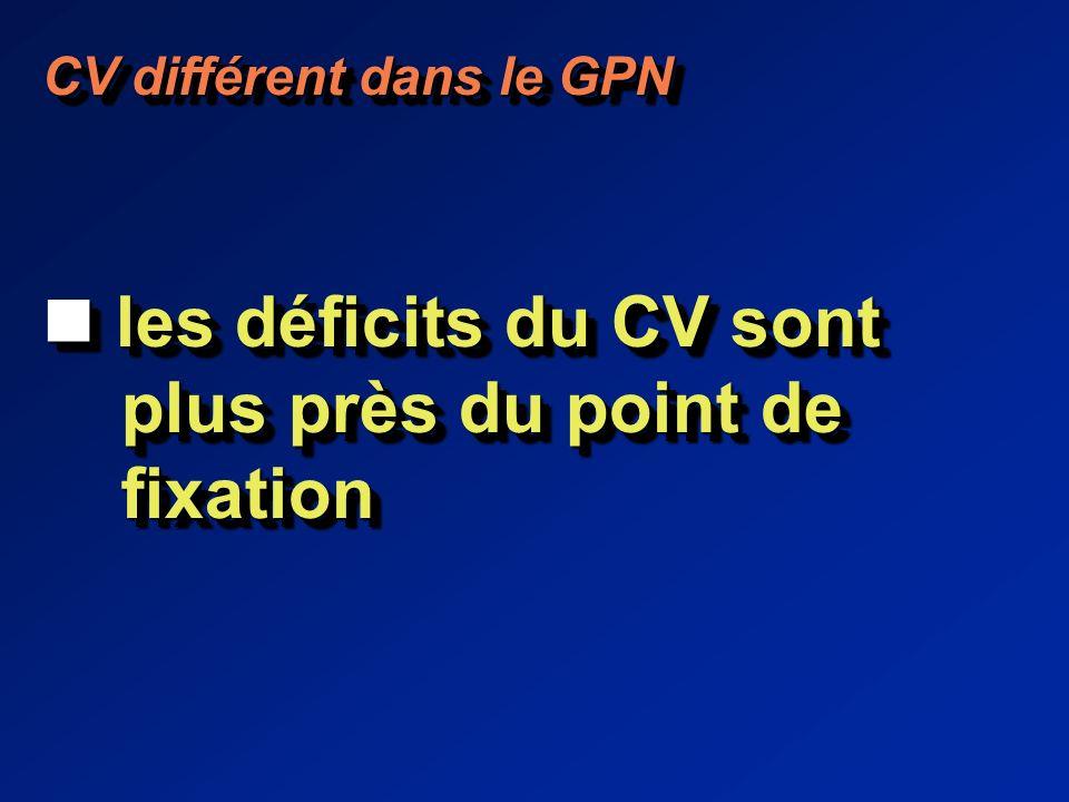 CV différent dans le GPN les déficits du CV sont les déficits du CV sont plus près du point de plus près du point de fixation fixation CV différent dans le GPN les déficits du CV sont les déficits du CV sont plus près du point de plus près du point de fixation fixation