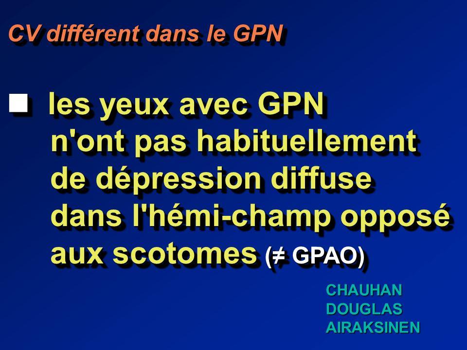 CV différent dans le GPN les yeux avec GPN les yeux avec GPN n ont pas habituellement n ont pas habituellement de dépression diffuse de dépression diffuse dans l hémi-champ opposé dans l hémi-champ opposé aux scotomes ( GPAO) aux scotomes ( GPAO) CV différent dans le GPN les yeux avec GPN les yeux avec GPN n ont pas habituellement n ont pas habituellement de dépression diffuse de dépression diffuse dans l hémi-champ opposé dans l hémi-champ opposé aux scotomes ( GPAO) aux scotomes ( GPAO) CHAUHANDOUGLASAIRAKSINEN