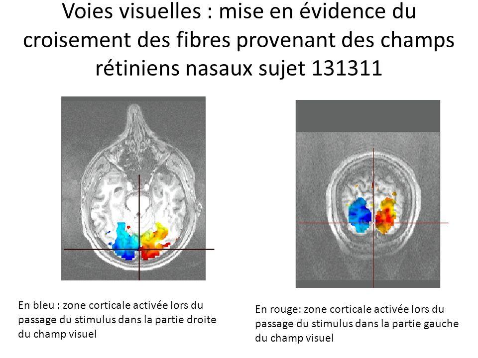 Voies visuelles : mise en évidence du croisement des fibres provenant des champs rétiniens nasaux sujet 131311 En bleu : zone corticale activée lors d
