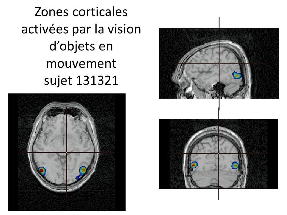 Zones corticales activées par la vision dobjets en mouvement sujet 131321
