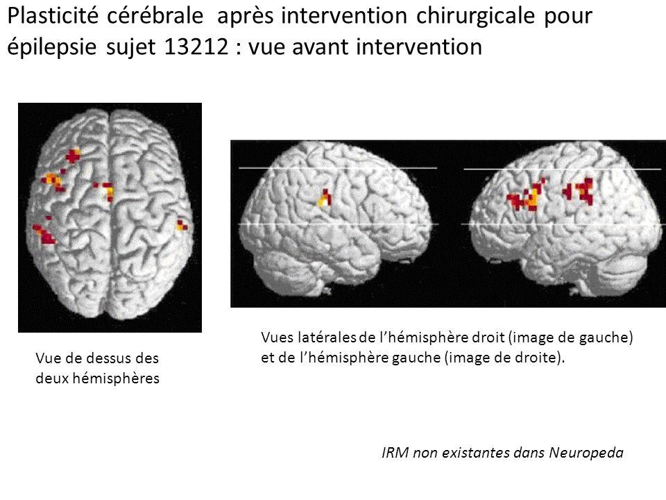 Plasticité cérébrale après intervention chirurgicale pour épilepsie sujet 13212 : vue avant intervention Vue de dessus des deux hémisphères Vues latér
