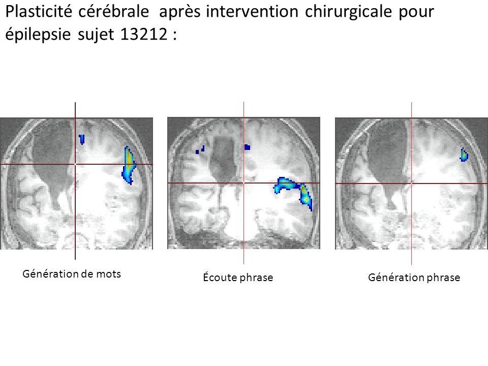 Plasticité cérébrale après intervention chirurgicale pour épilepsie sujet 13212 : Génération de mots Écoute phraseGénération phrase