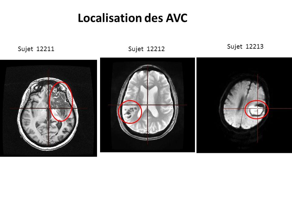 Localisation des AVC Sujet 12211Sujet 12212 Sujet 12213