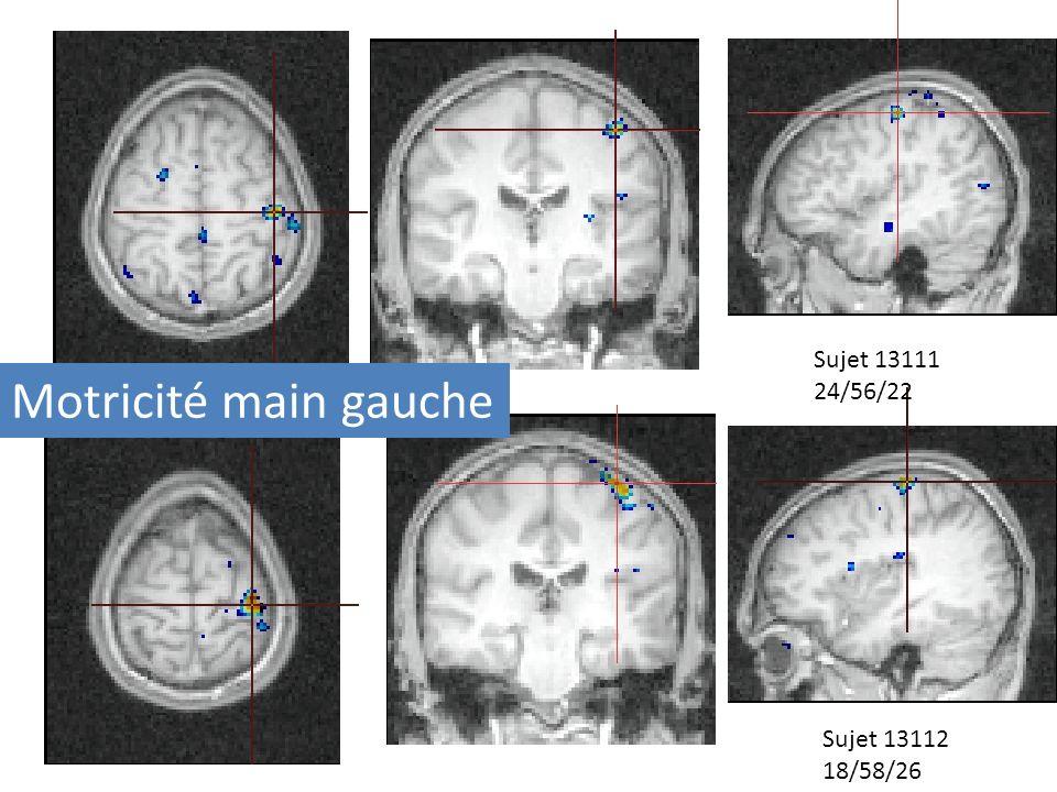 Perception dun stimulus visuel : mouvement sujet 131321 Mouvement de la main en réponse à la perception dun stimulus visuel : mouvement sujet 13112 Vue axiale