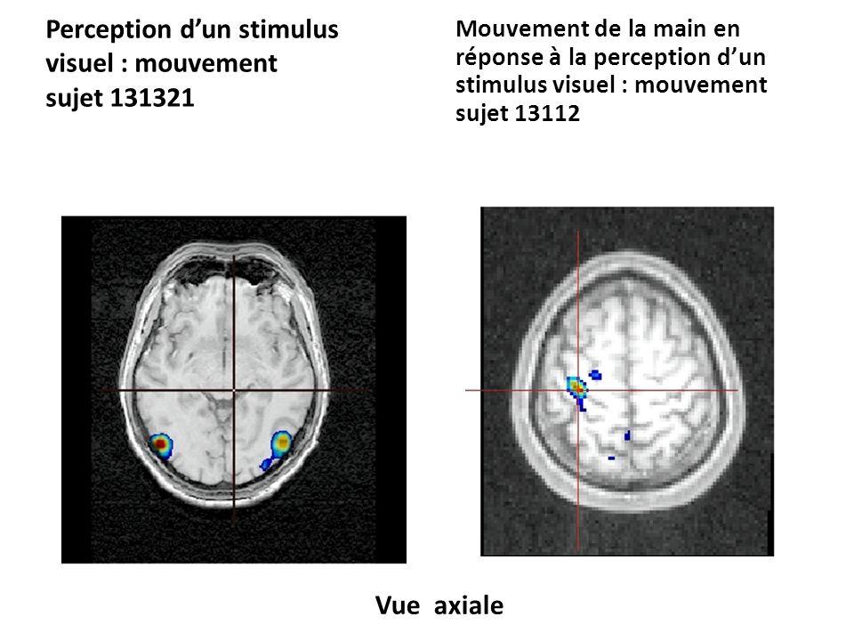 Perception dun stimulus visuel : mouvement sujet 131321 Mouvement de la main en réponse à la perception dun stimulus visuel : mouvement sujet 13112 Vue coronale