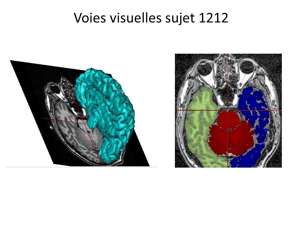 Voies visuelles : mise en évidence du croisement des fibres provenant des champs rétiniens nasaux sujet 131311 En bleu : zone corticale activée lors du passage du stimulus dans la partie droite du champ visuel En rouge: zone corticale activée lors du passage du stimulus dans la partie gauche du champ visuel