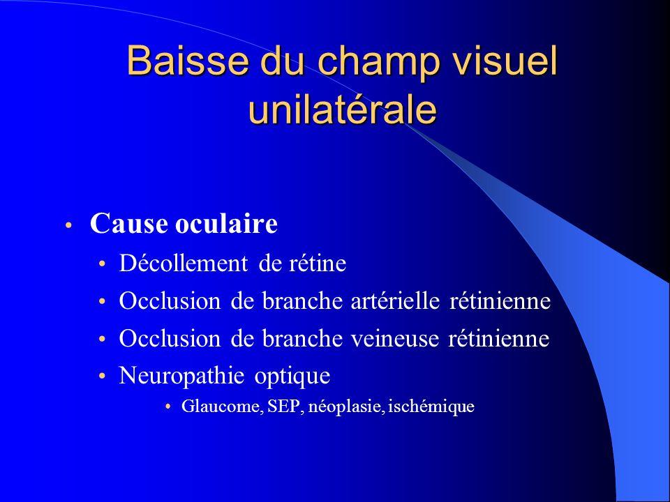 Baisse du champ visuel unilatérale Cause oculaire Décollement de rétine Occlusion de branche artérielle rétinienne Occlusion de branche veineuse rétin