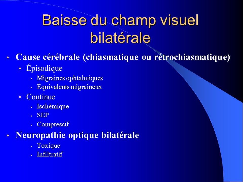 Baisse du champ visuel bilatérale Cause cérébrale (chiasmatique ou rétrochiasmatique) Épisodique Migraines ophtalmiques Équivalents migraineux Continu