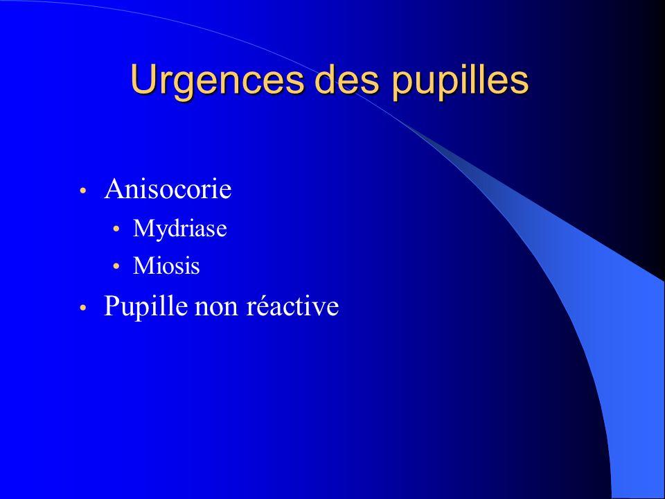 Urgences des pupilles Anisocorie Mydriase Miosis Pupille non réactive