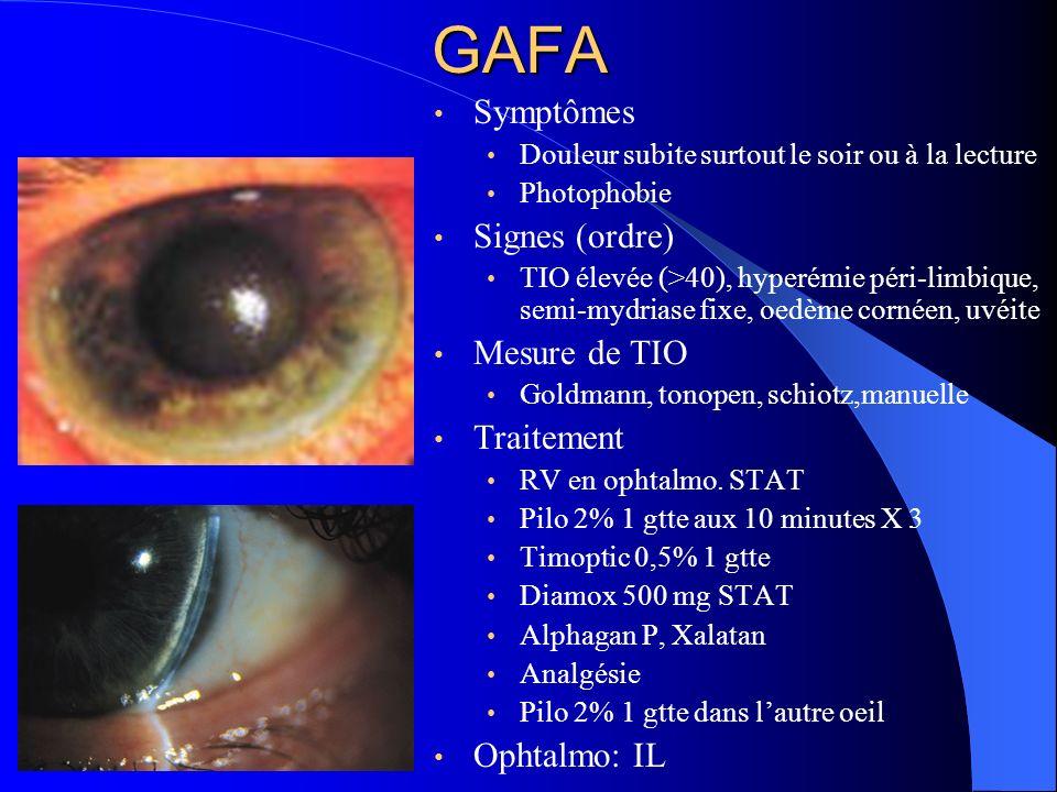 GAFA Symptômes Douleur subite surtout le soir ou à la lecture Photophobie Signes (ordre) TIO élevée (>40), hyperémie péri-limbique, semi-mydriase fixe