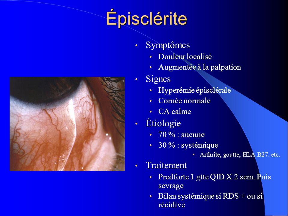 Épisclérite Symptômes Douleur localisé Augmentée à la palpation Signes Hyperémie épisclérale Cornée normale CA calme Étiologie 70 % : aucune 30 % : sy