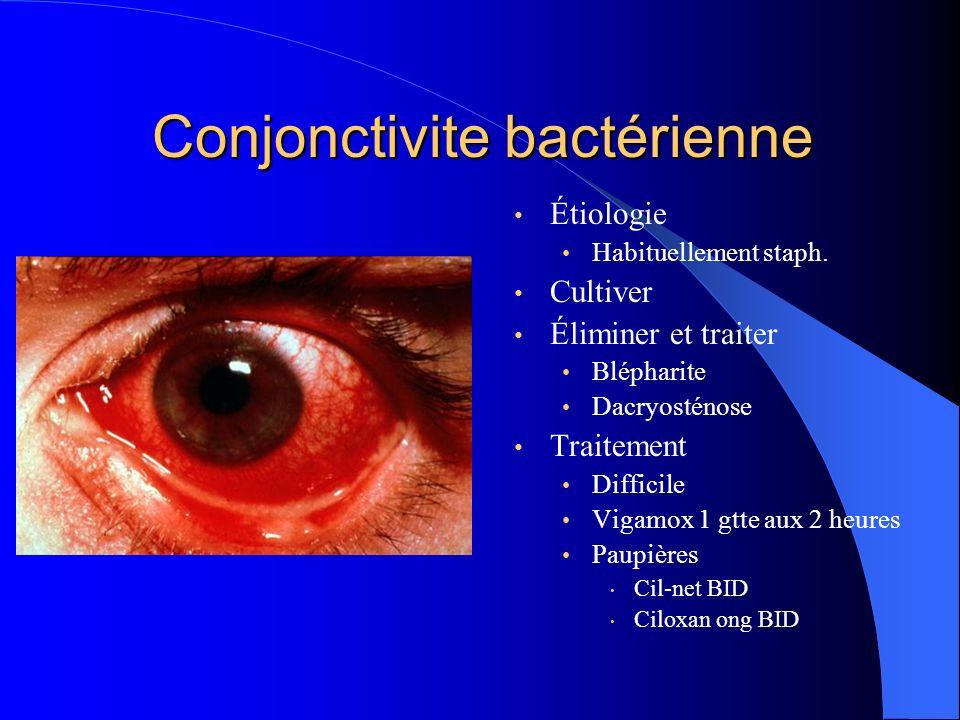 Conjonctivite bactérienne Étiologie Habituellement staph. Cultiver Éliminer et traiter Blépharite Dacryosténose Traitement Difficile Vigamox 1 gtte au