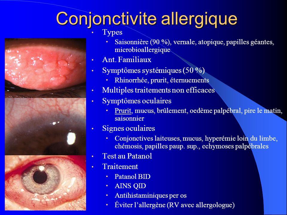 Conjonctivite allergique Types Saisonnière (90 %), vernale, atopique, papilles géantes, microbioallergique Ant. Familiaux Symptômes systémiques (50 %)