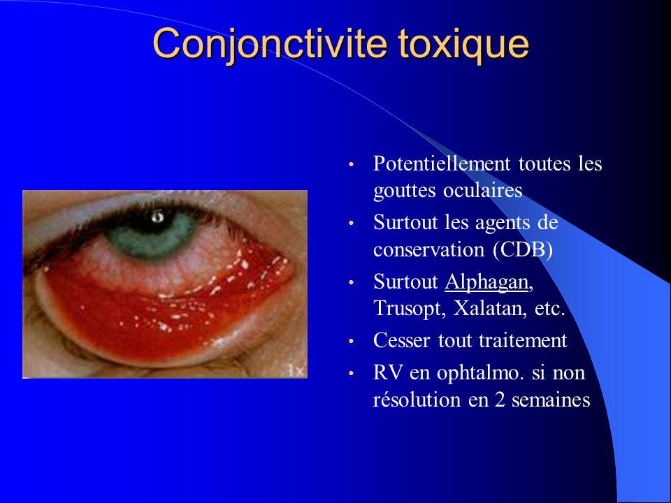 Conjonctivite toxique Potentiellement toutes les gouttes oculaires Surtout les agents de conservation (CDB) Surtout Alphagan, Trusopt, Xalatan, etc. C