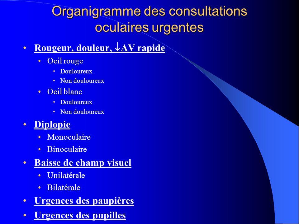 Organigramme des consultations oculaires urgentes Rougeur, douleur, AV rapide Oeil rouge Douloureux Non douloureux Oeil blanc Douloureux Non douloureu