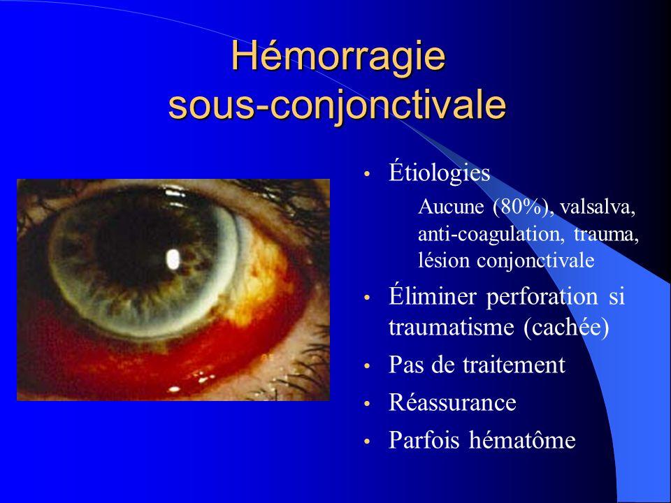 Hémorragie sous-conjonctivale Étiologies Aucune (80%), valsalva, anti-coagulation, trauma, lésion conjonctivale Éliminer perforation si traumatisme (c