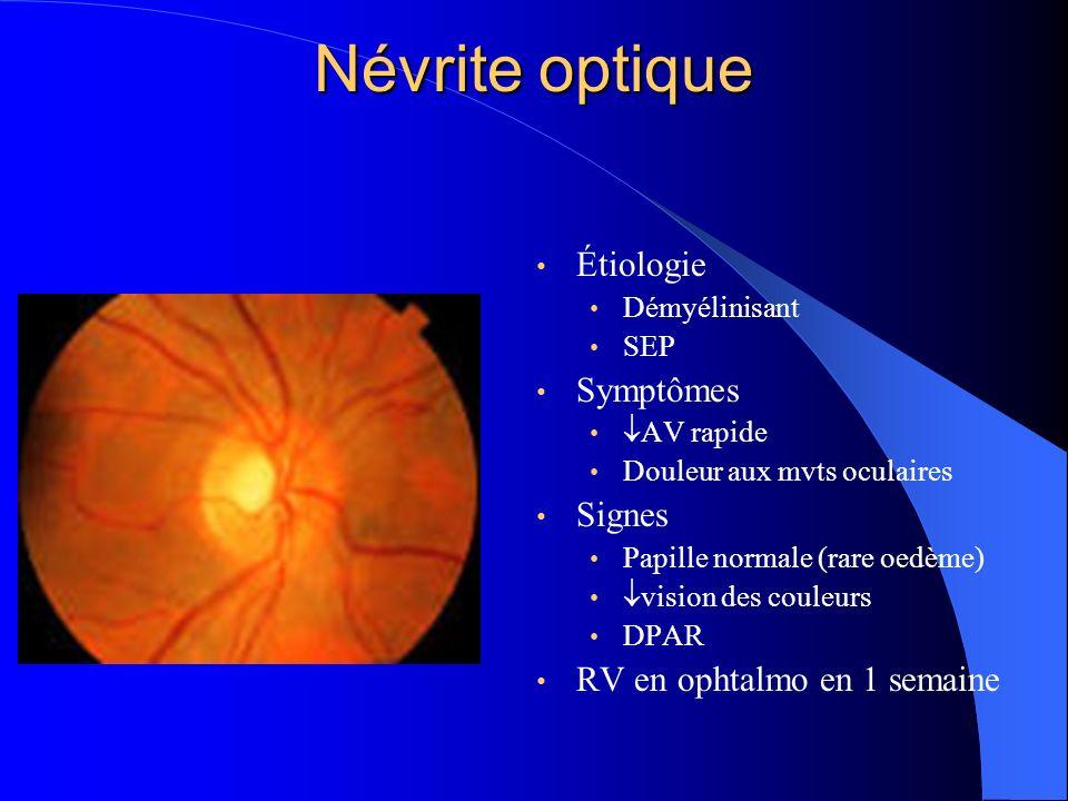Névrite optique Étiologie Démyélinisant SEP Symptômes AV rapide Douleur aux mvts oculaires Signes Papille normale (rare oedème) vision des couleurs DP