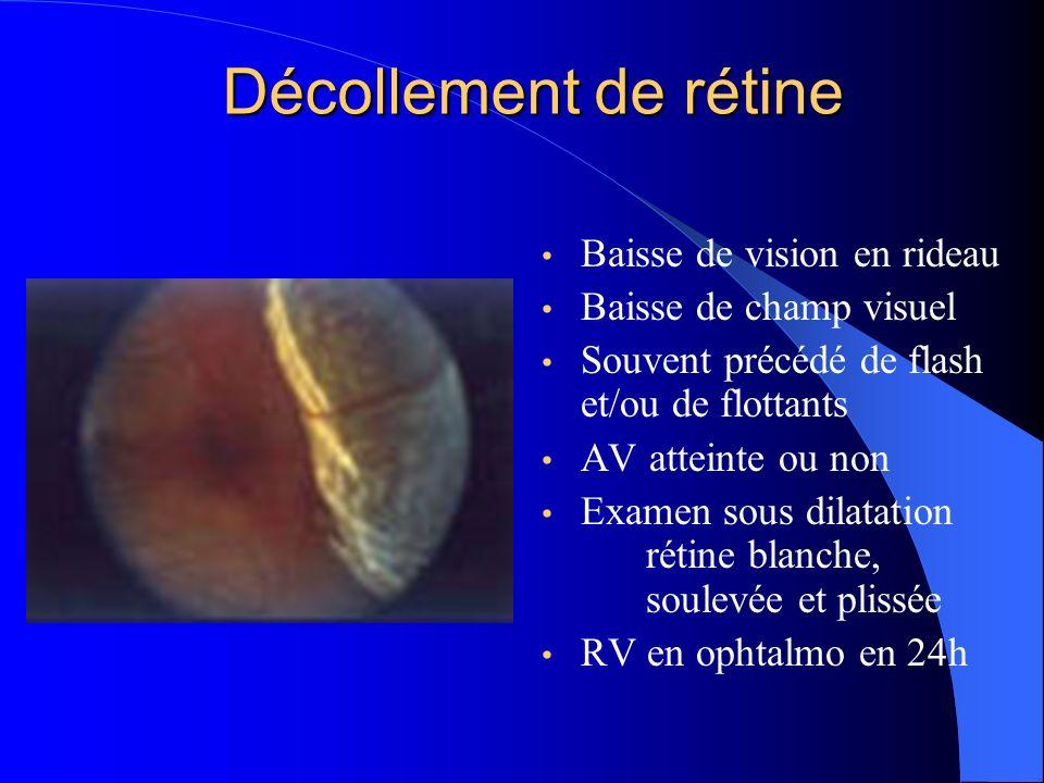 Décollement de rétine Baisse de vision en rideau Baisse de champ visuel Souvent précédé de flash et/ou de flottants AV atteinte ou non Examen sous dil