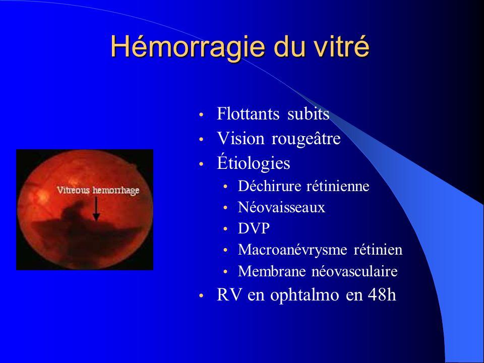 Hémorragie du vitré Flottants subits Vision rougeâtre Étiologies Déchirure rétinienne Néovaisseaux DVP Macroanévrysme rétinien Membrane néovasculaire