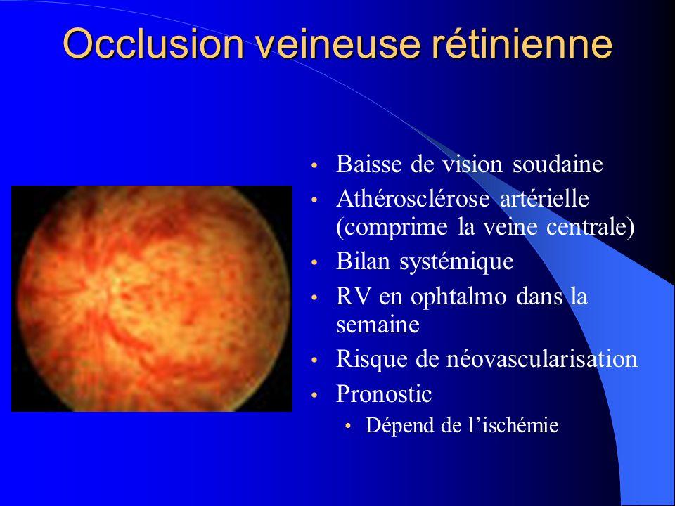 Occlusion veineuse rétinienne Baisse de vision soudaine Athérosclérose artérielle (comprime la veine centrale) Bilan systémique RV en ophtalmo dans la