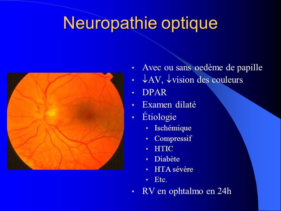 Neuropathie optique Avec ou sans oedème de papille AV, vision des couleurs DPAR Examen dilaté Étiologie Ischémique Compressif HTIC Diabète HTA sévère