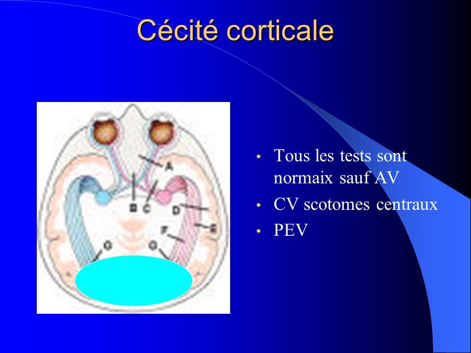 Cécité corticale Tous les tests sont normaix sauf AV CV scotomes centraux PEV