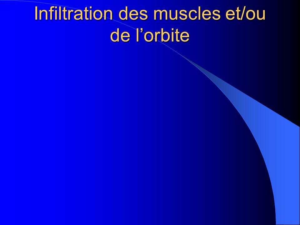 Infiltration des muscles et/ou de lorbite