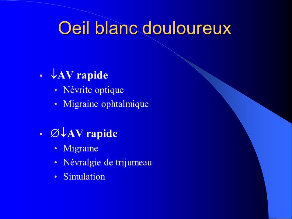Oeil blanc douloureux AV rapide Névrite optique Migraine ophtalmique AV rapide Migraine Névralgie de trijumeau Simulation