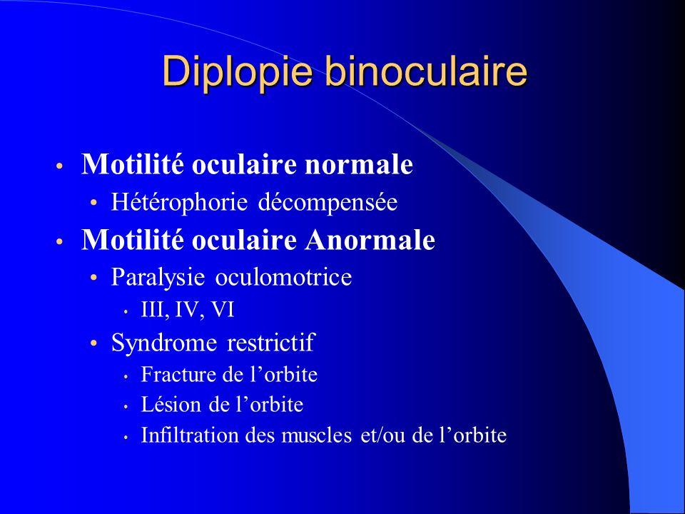 Diplopie binoculaire Motilité oculaire normale Hétérophorie décompensée Motilité oculaire Anormale Paralysie oculomotrice III, IV, VI Syndrome restric