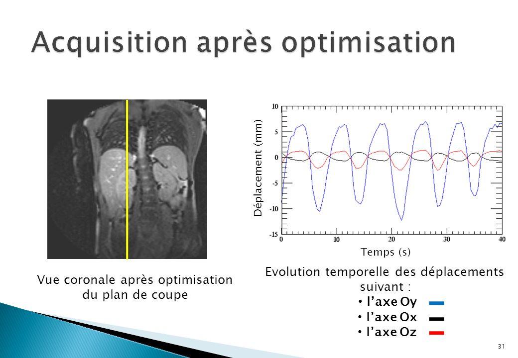31 Temps (s) Déplacement (mm) Vue coronale après optimisation du plan de coupe Evolution temporelle des déplacements suivant : laxe Oy laxe Ox laxe Oz