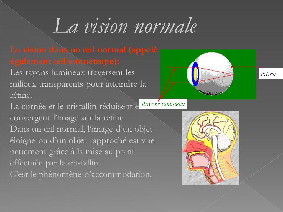 La lumière est focalisée par la cornée, elle entre ensuite par la pupille, elle est convergée par le cristallin et est captée par la rétine qui produi