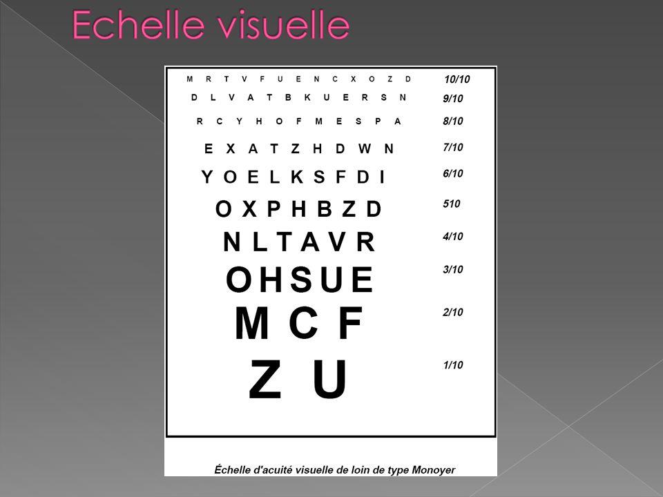La vision normale La vision dans un œil normal (appelé également œil emmétrope): Les rayons lumineux traversent les milieux transparents pour atteindr