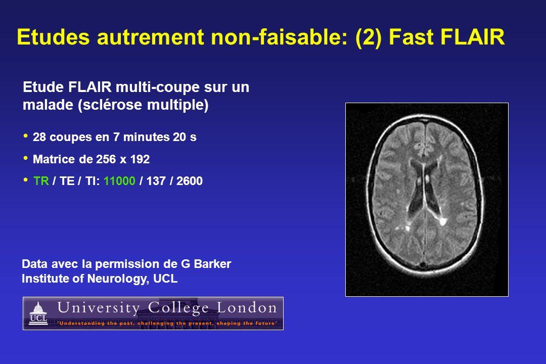 Etudes autrement non-faisable: (2) Fast FLAIR 28 coupes en 7 minutes 20 s Matrice de 256 x 192 TR / TE / TI: 11000 / 137 / 2600 Etude FLAIR multi-coupe sur un malade (sclérose multiple) Data avec la permission de G Barker Institute of Neurology, UCL