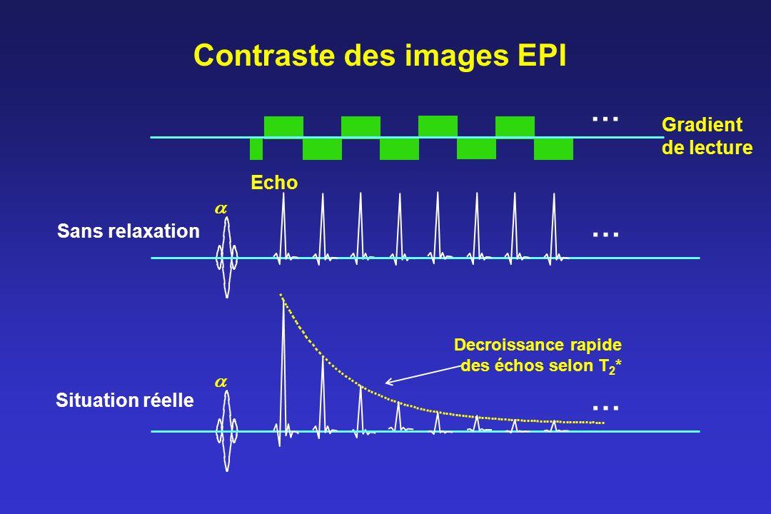 Contraste des images EPI Echo … Gradient de lecture … … Sans relaxation Situation réelle Decroissance rapide des échos selon T 2 *