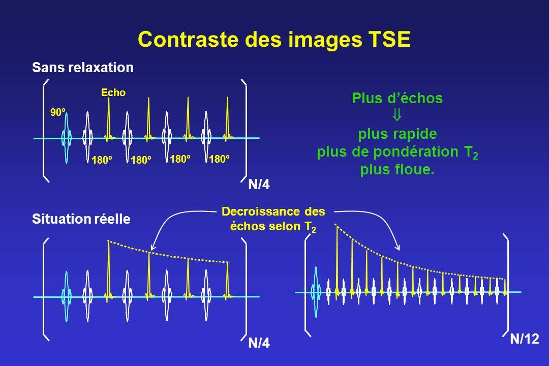 Contraste des images TSE Sans relaxation Situation réelle Decroissance des échos selon T 2 Echo 90° 180° N/4 N/12 Plus déchos plus rapide plus de pondération T 2 plus floue.