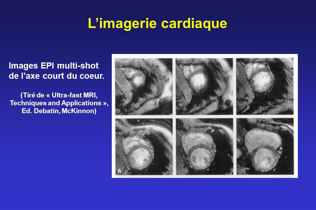 Limagerie cardiaque Images EPI multi-shot de laxe court du coeur.