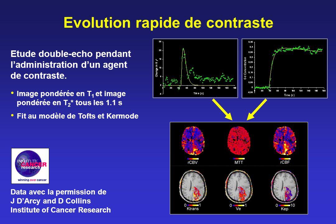 Evolution rapide de contraste Image pondérée en T 1 et image pondérée en T 2 * tous les 1.1 s Fit au modèle de Tofts et Kermode Etude double-echo pendant ladministration dun agent de contraste.